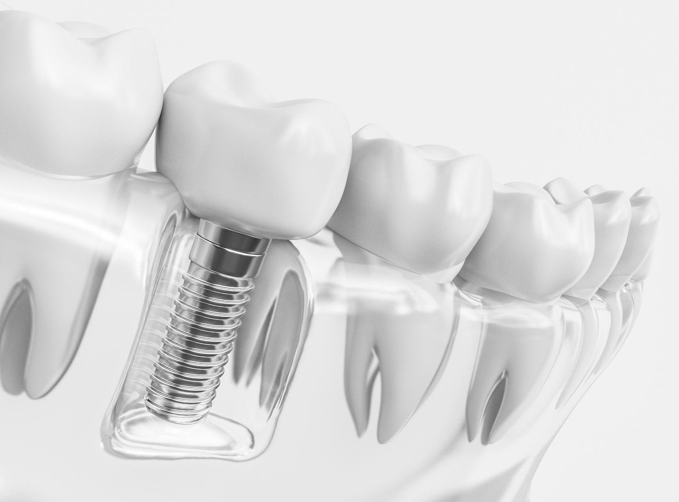 implants dentaires réunion